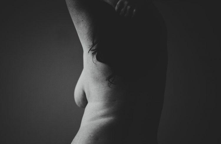 breast minority barriers